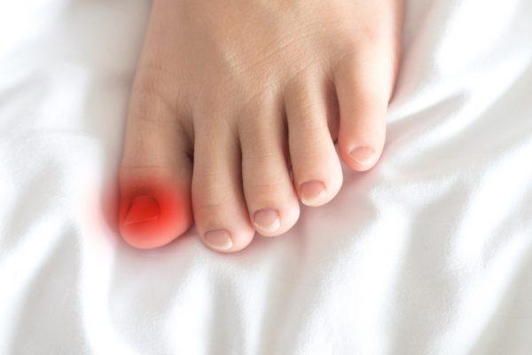 Signs-of-an-infected-ingrown-toenail-1-600x400