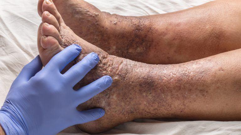 extremity-ischaemia-image-768x432